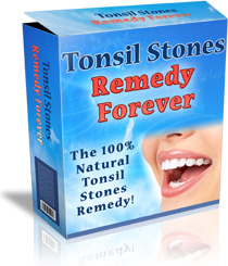 Tonsil Stones Remedy Forever™
